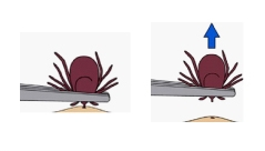 Drawing of tweezers removing tick from skin